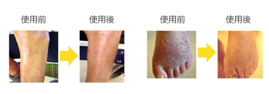 使用舞潤特級保濕霜對幹燥肌膚的改善效果