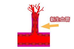 血管生成機理圖_04