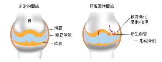 退行性關節炎和血管生成