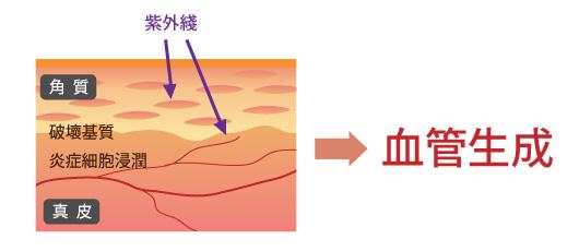 由紫外綫引起的血管生成血管新生和皮膚疾病