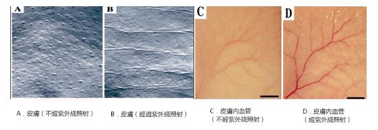 紫外綫照射引起小鼠皮膚產生皺紋以及形成血管生成血管新生和皮膚疾病