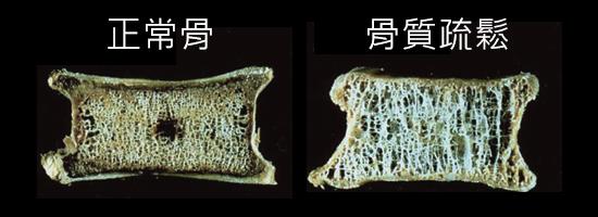 正常的骨和骨質疏鬆症的骨