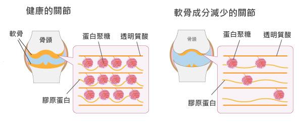 關節軟骨的蛋白聚糖