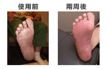 牛皮癬患者對于Ultra Maco的使用