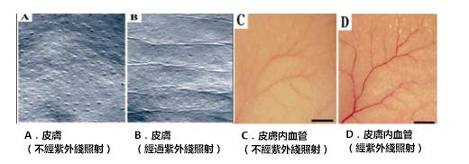 Ultra maco: 血管新生和皺紋的關聯