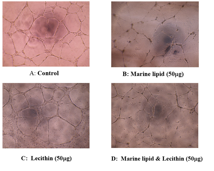 Synergistic effect on anti-angiogenesis by a mixture of marine lipid with lecithin