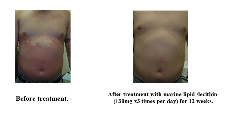 Difference of before and after treatment