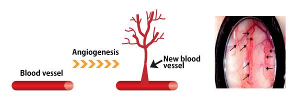 angiogenesis01