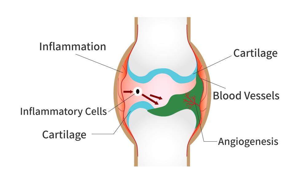 Angiogenesis in Rheumatoid Arthritis