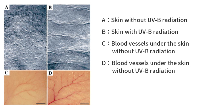 Relationship of Angiogenesis and Wrinkles in skin