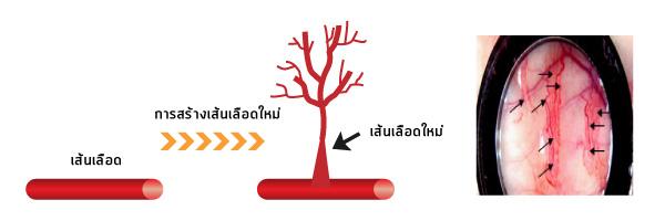 Angiogenesis (การสร้างเส้นเลือดใหม่) คืออะไร?_01