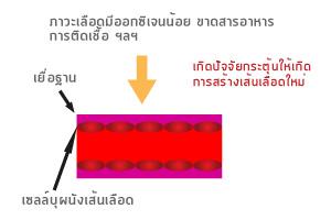 Angiogenesis (การสร้างเส้นเลือดใหม่) คืออะไร?_02