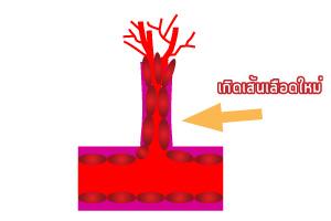 Angiogenesis (การสร้างเส้นเลือดใหม่) คืออะไร?_04