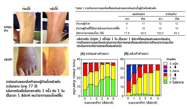 Maijun Gripin Cream การทดลองจริงกับผู้ป่วยโรคผิวแห้ง