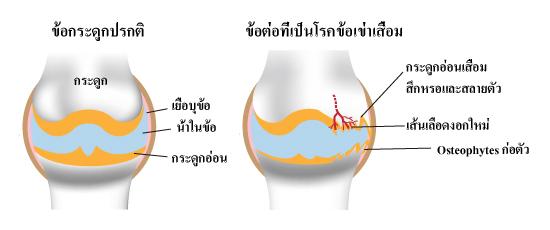 เส้นเลือดงอกใหม่กับโรคข้อเข่าเสื่อม