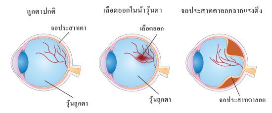 เลือดออกในน้ำวุ้นตาและจอประสาทตาลอกจากแรงดึง