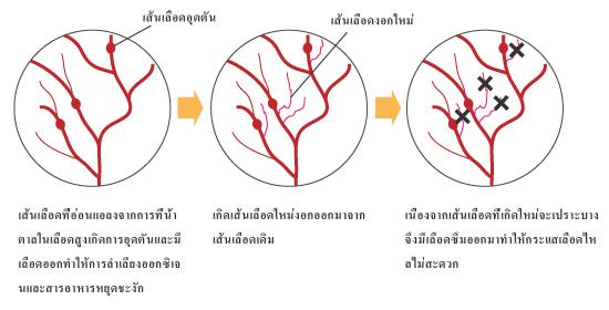 การทรุดลงของอาการของโรคที่ก่อให้เกิดเส้นเลือดอุดตัน