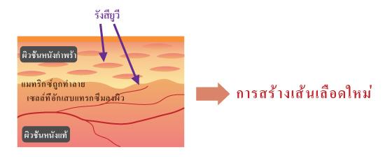 การเกิดเส้นเลือดงอกใหม่จากรังสียูวี