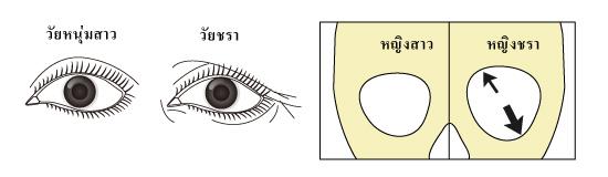 ความสัมพันธ์กันของอาการโรคกระดูกพรุนบริเวณกะโหลกศีรษะกับลักษณะของใบหน้าที่มองเห็นได้จากภายนอก