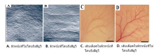 อัลตร้ามาโกะ (Ultra maco): การเกิดริ้วรอยและการก่อตัวของเส้นเลือดฝอยงอกใหม่ในผิวหนังของหนูที่โดนรังสียูวี